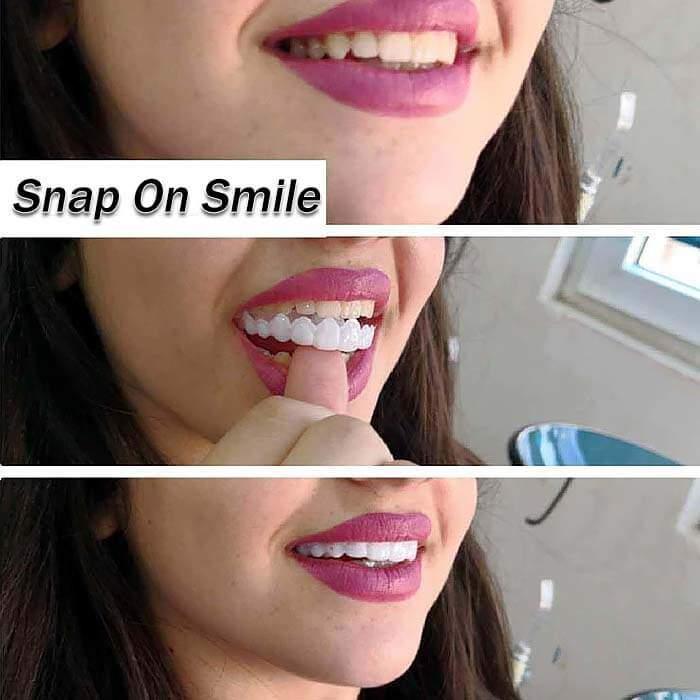 Девушка показывает, как использовать виниры Snap-On Smile