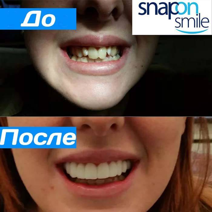 Девушка показывает, как выглядят её зубы до и после использования съемных винир Snap-On Smile
