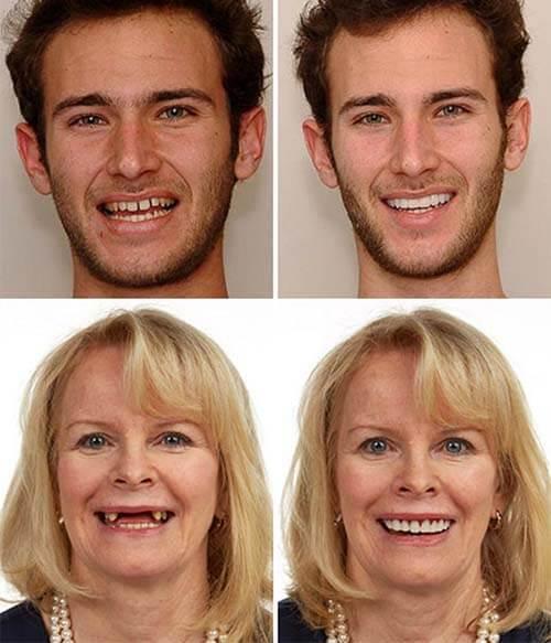 Мужчина и женщина ДО и ПОСЛЕ использования виниров Perfect Smile