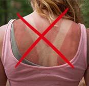 Девушка с обгоревшей спиной