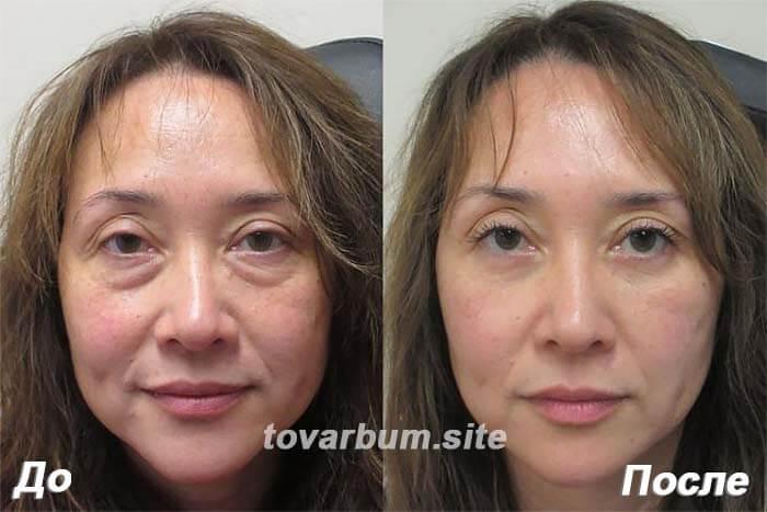 Сыворотка-массажер от морщин – LiftRoller. Эффект применения на лице женщины
