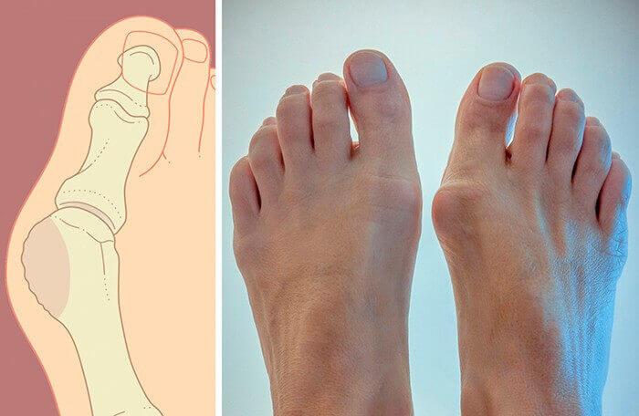 «Косточка» на ноге – фото и рисунок