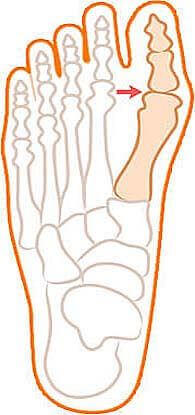 Рисунок с начальной стадией деформации большого пальца ноги