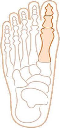 Рисунок со здоровым суставом стопы