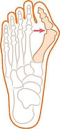 Рисунок с ярко выраженной деформацией большого пальца ноги