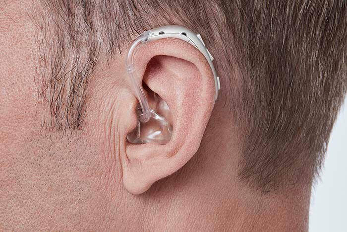 Мужчина использует прибор для улучшения для слуха - Oticon Xceed