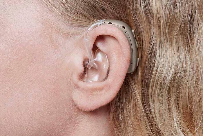 Женщина использует прибор для улучшения для слуха - Oticon Xceed